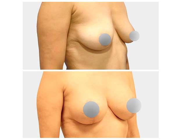 Mamas Tubulares o Tuberosas