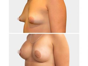 Mamas Tubulares de un Paciente