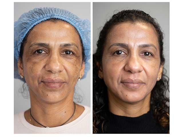 Cómo eliminar las manchas faciales de forma definitiva