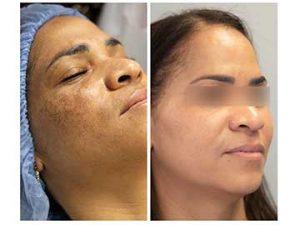 Tratamiento con peeling químico de manchas del rostro