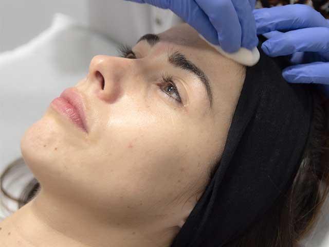 Tratamientos faciales de Medicina Estética para lucir una piel perfecta estas navidades