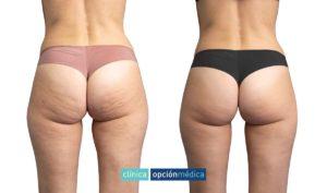 lipoestetic antes y después
