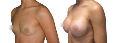 antes-despues-aumento-mamas