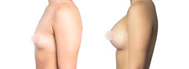 antes-despues-aumento-senos
