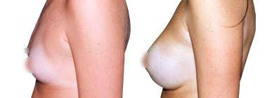 aumento-de-mamas-antes-despues-1