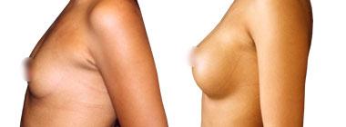 aumento-de-mamas-antes-despues-2